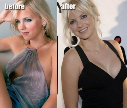 Can a Plastic Surgery Restore Your Self Esteem Picture