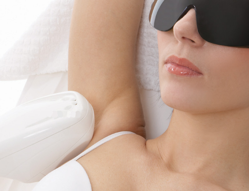 Laser hair removal: efficient, durable and simple
